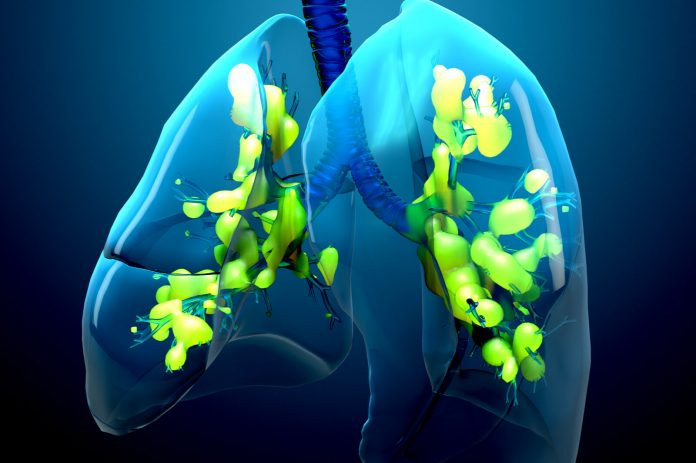 Fewer Lung Fungi Causing Severe ARDS, Study Shows